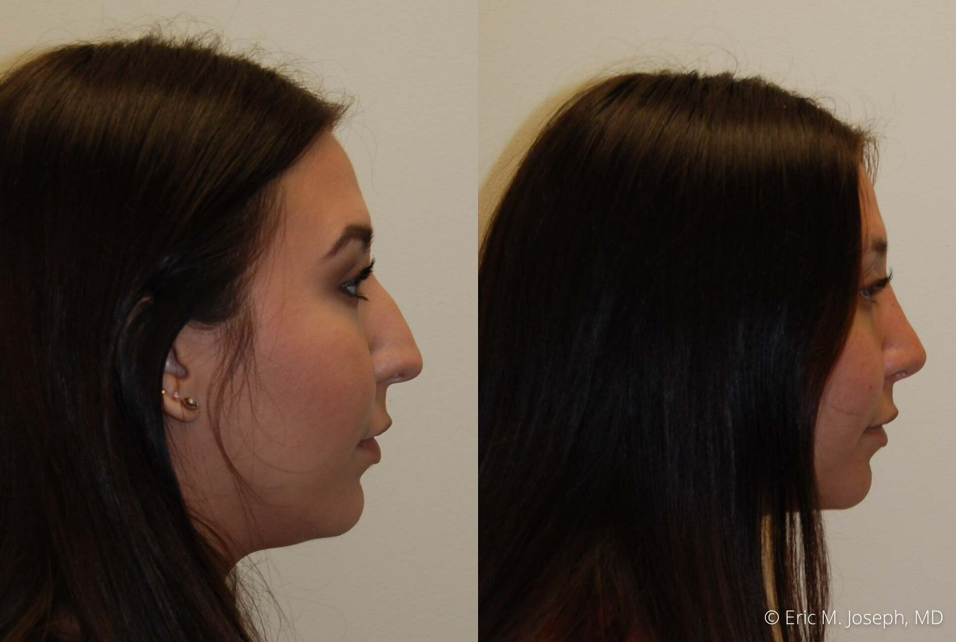 rhinoplasty-nj-nose-job-new-jersey-0605.jpg