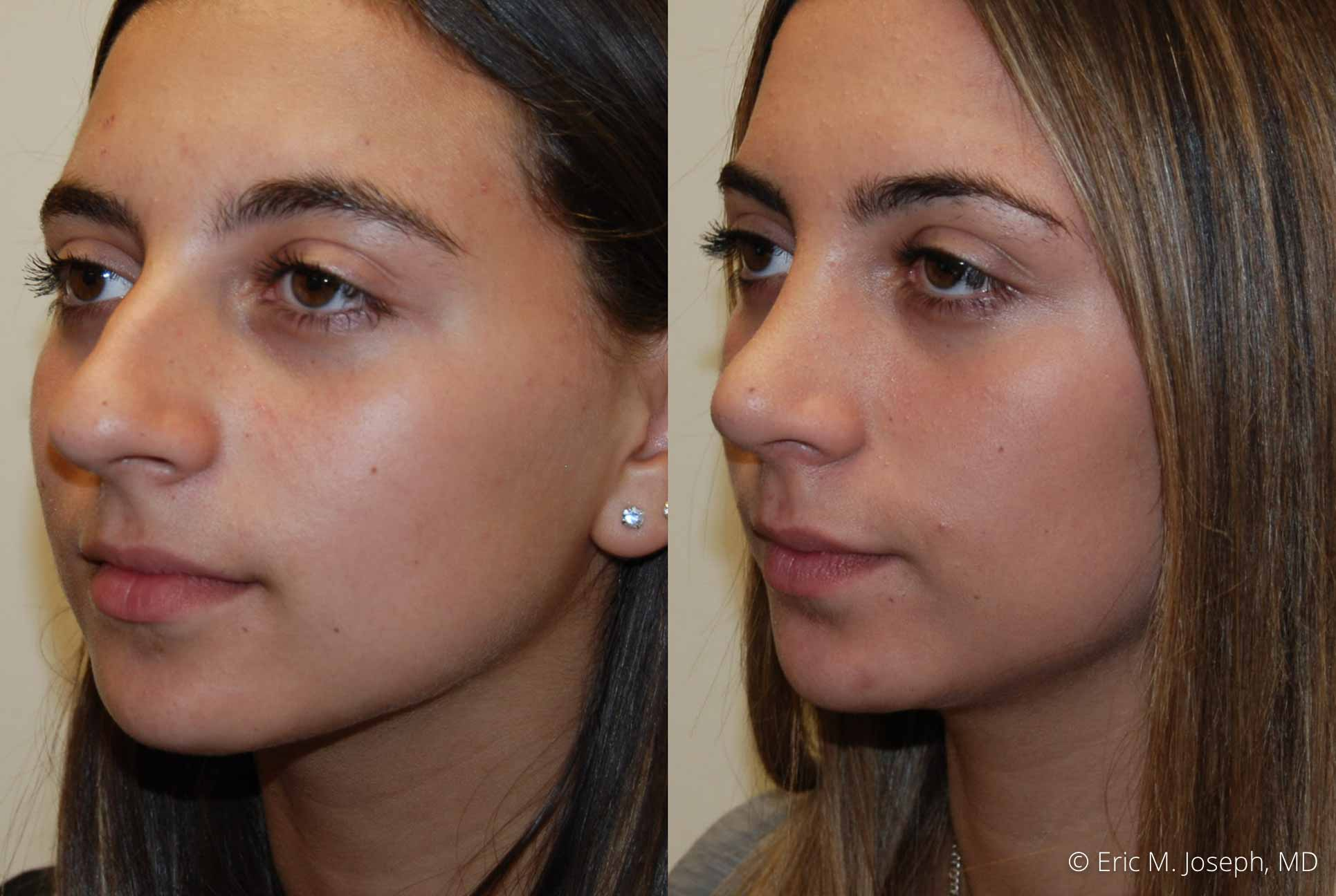 rhinoplasty-nj-nose-job-new-jersey-0613.jpg