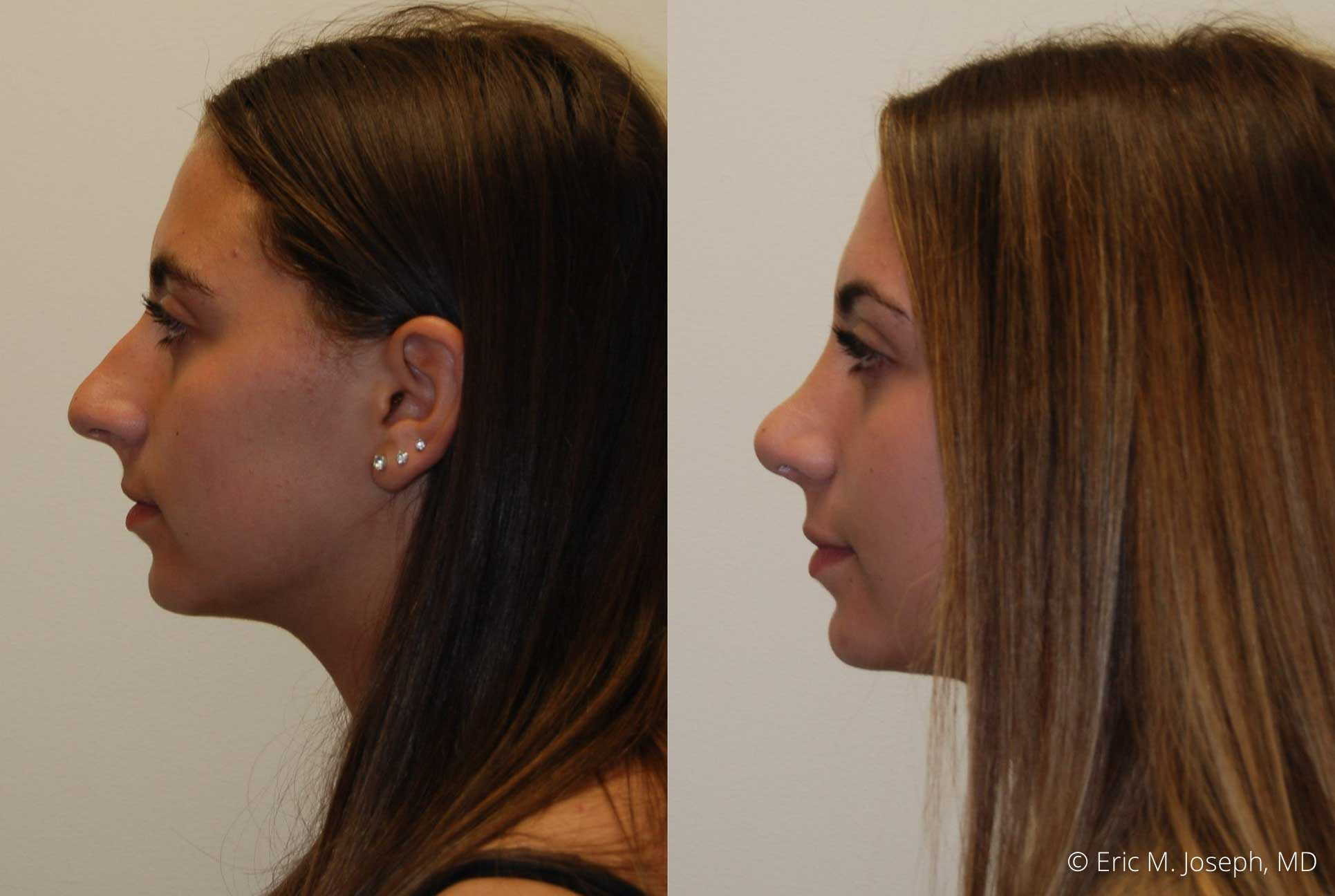 rhinoplasty-nj-nose-job-new-jersey-0614.jpg