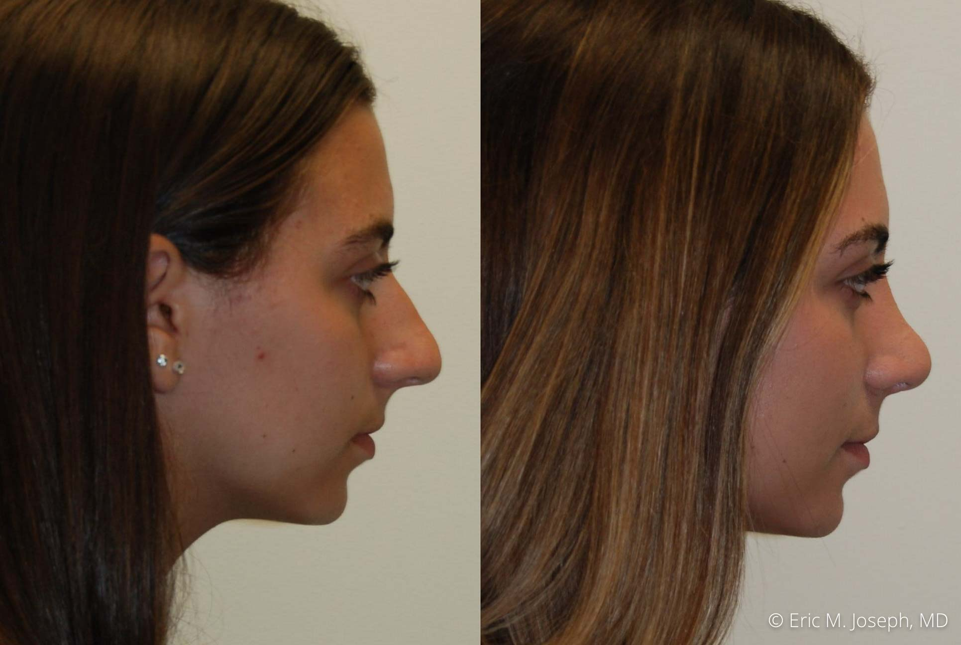 rhinoplasty-nj-nose-job-new-jersey-0615.jpg
