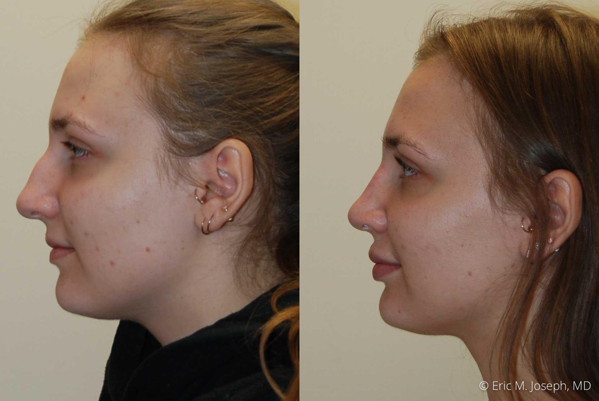 rhinoplasty-nj-nose-job-new-jersey-0609.jpg