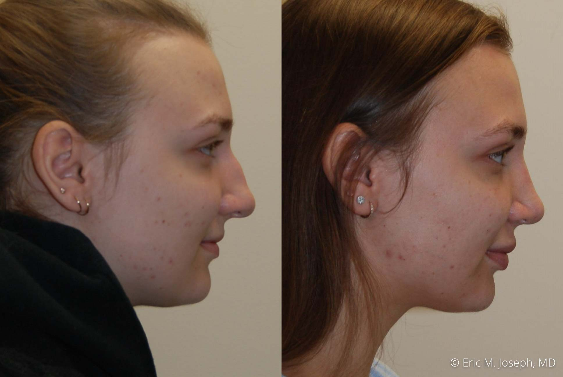 rhinoplasty-nj-nose-job-new-jersey-0610.jpg