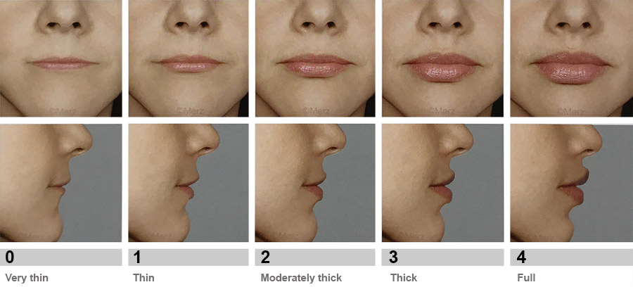 lip fillers before after pictures Taunton Somerset