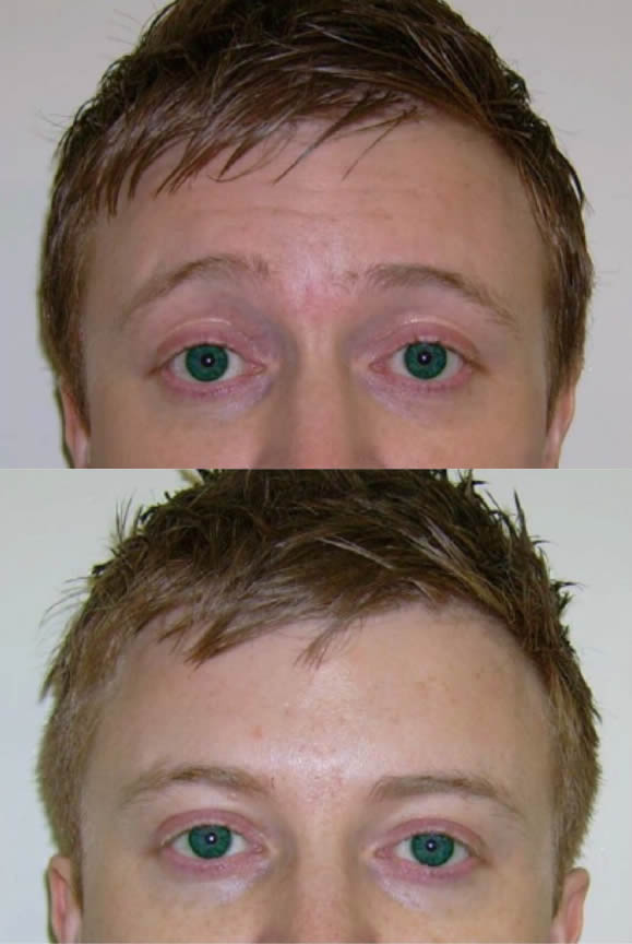 Before (top) and after treatment