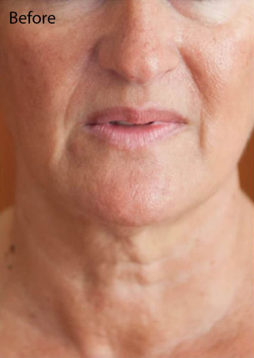 NECK treatments Dr Baines Taunton before and after
