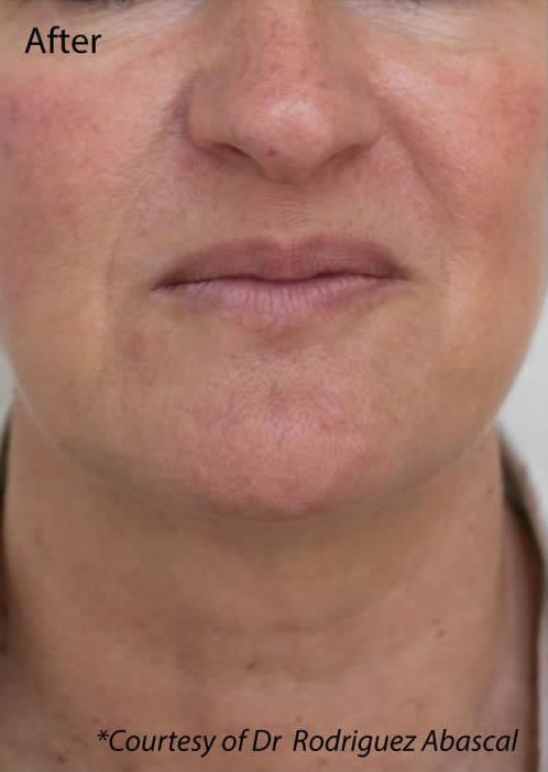 NECK treatments Dr Baines Taunton