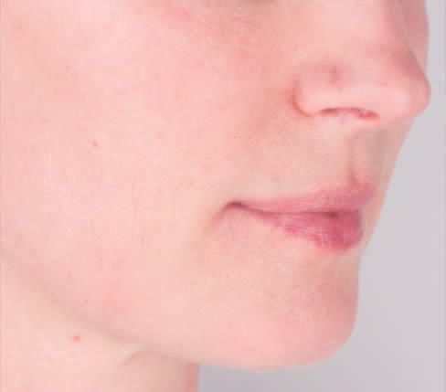 Before treatment: Oral comissures, marionette lines and lower lip