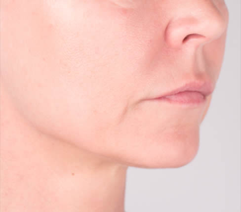 Before treatment: Oral comissures, marionette lines, lips