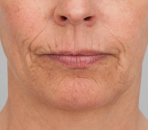 Before treatment: Vertical lip lines, vermilion border and lips