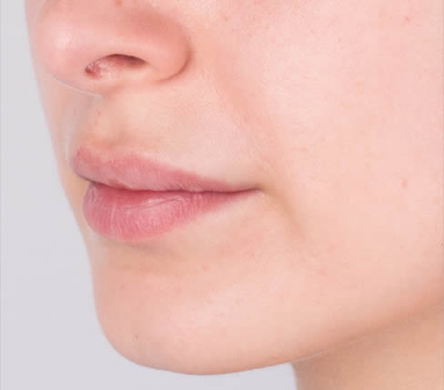 Before treatment: Body of upper and lower lips and marionette lines