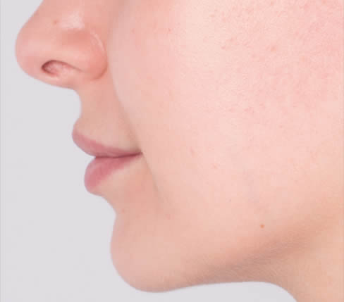 Before treatment: Body of the upper and lower lips and marionette lines