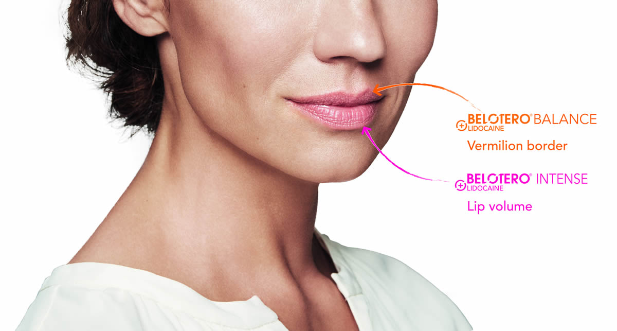 Belotero lip treatments before and after images Taunton Somerset