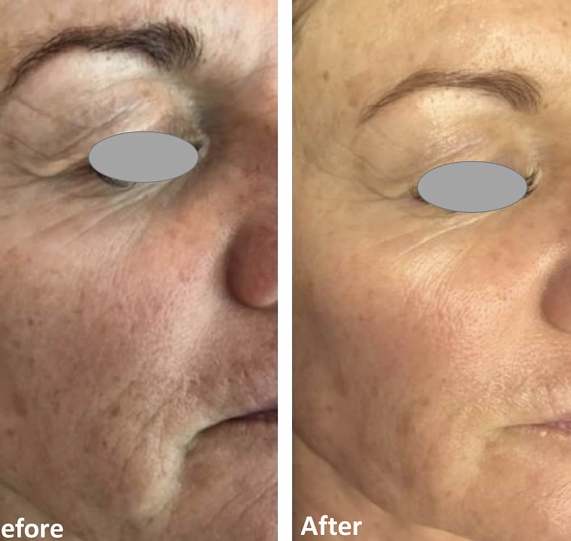 TIXEL treatment for wrinkles