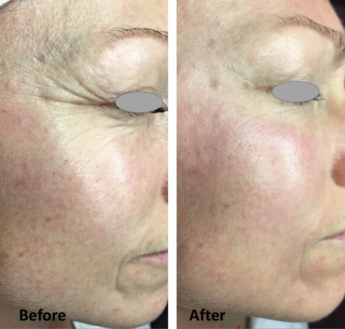 TIXEL treatment before after