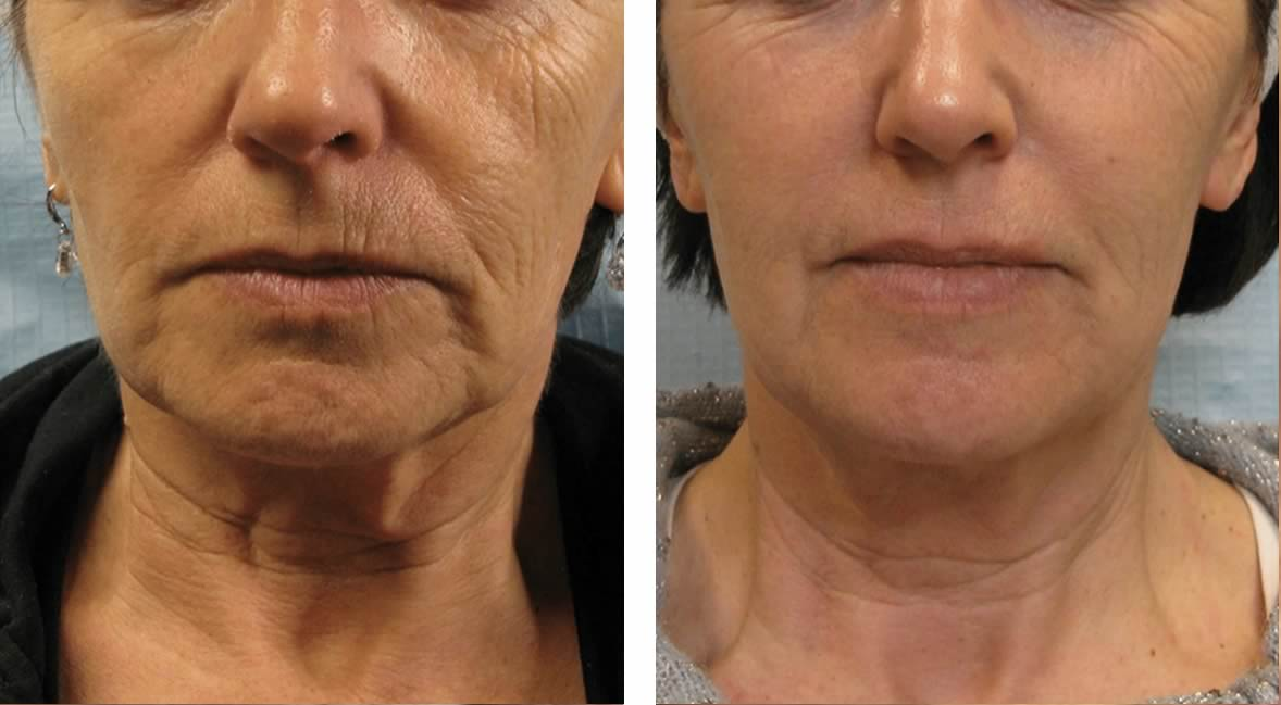 TIXEL treatment wrinkle tightening