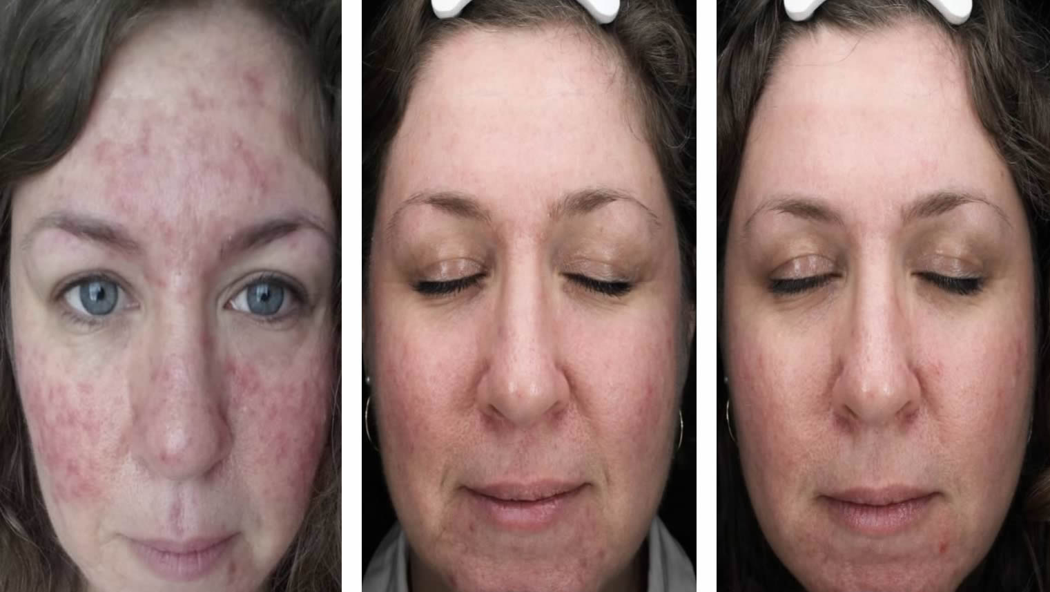 TIXEL treatment for rosacea Taunton