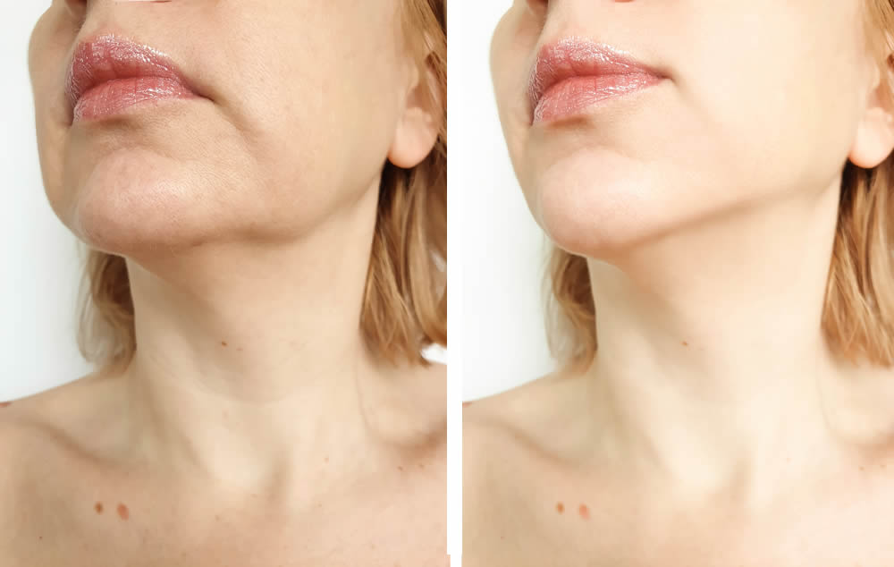 Treatments for sagging skin in Taunton
