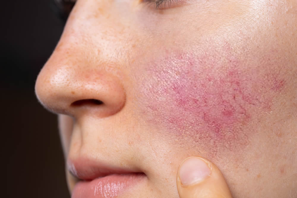 Rosacea management and treatment in Taunton