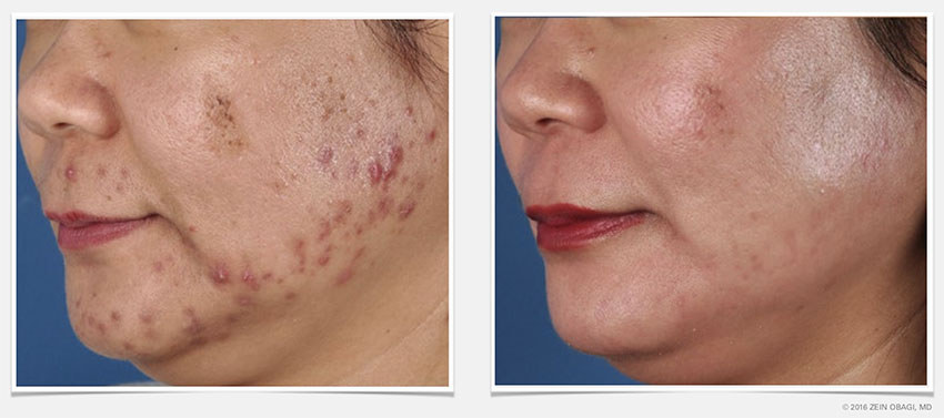 Acne treatment before and after images