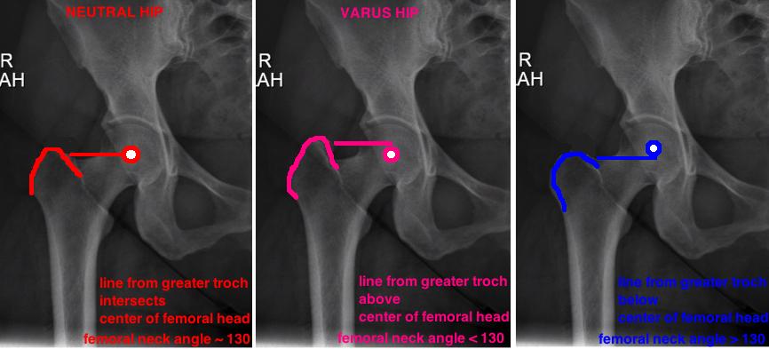 varus hip valgus hip on X-ray how to determine hip angle