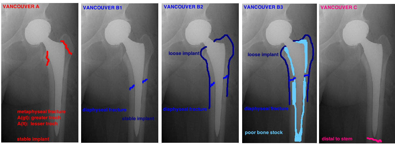 vancouver classification of periprosthetic femur fractures