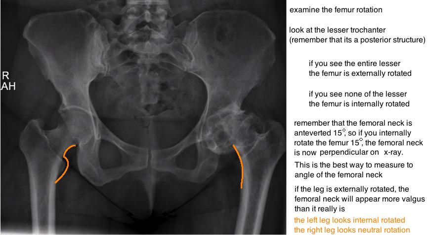 femoral rotation on pelvis xray