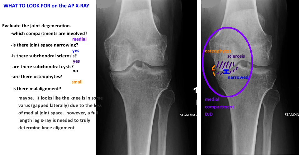 evaluating knee x-ray for knee arthritis