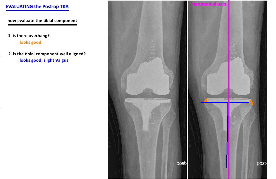 evaluate tka on xray overhang and alignment