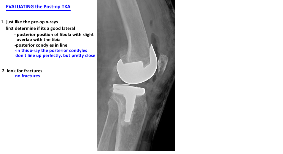 evaluate postop tka on lateral xray