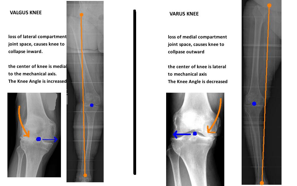 leg alignment in valgus knee and varus knee
