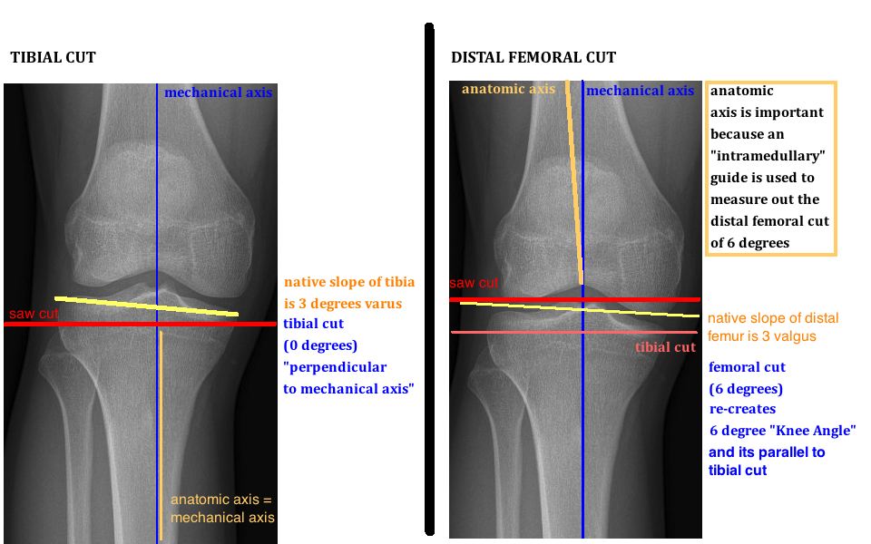 tibial cut and distal femoral cut for tka alignment in tka