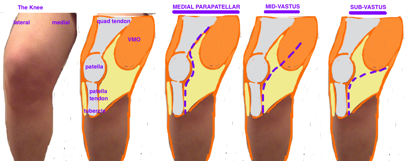 tka surgical approach - medial parapatellar, midvastus approach, subvastus approach