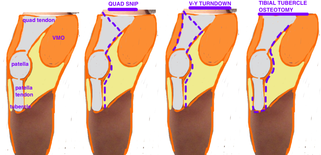 tka extensile approach - quad snip, v-y turndown, coonse adams, tibial tubercle osteotomy for revision tka