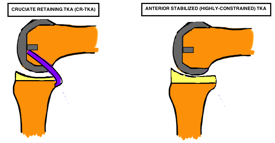 cruciate retaining TKA CR-TKA compared with anterior stabilized tka