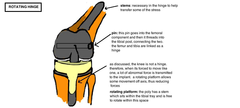 Hinge TKA design diagram