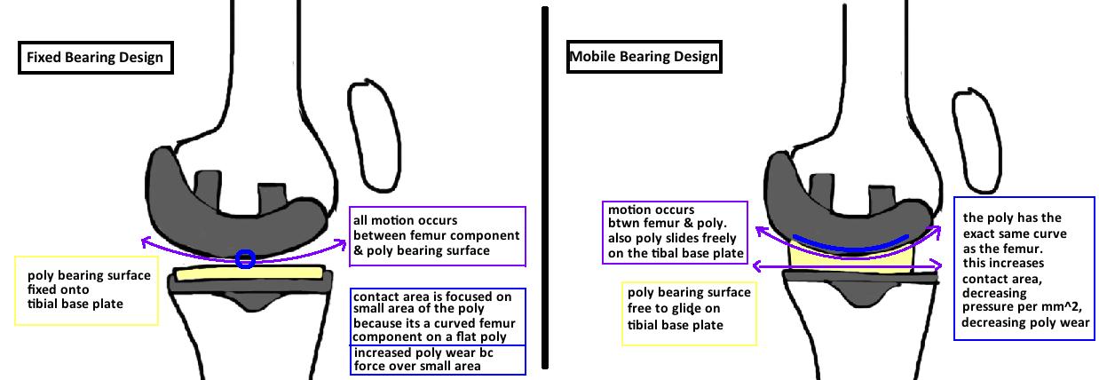 fixed bearing UKA design, mobile bearing UKA design diagram