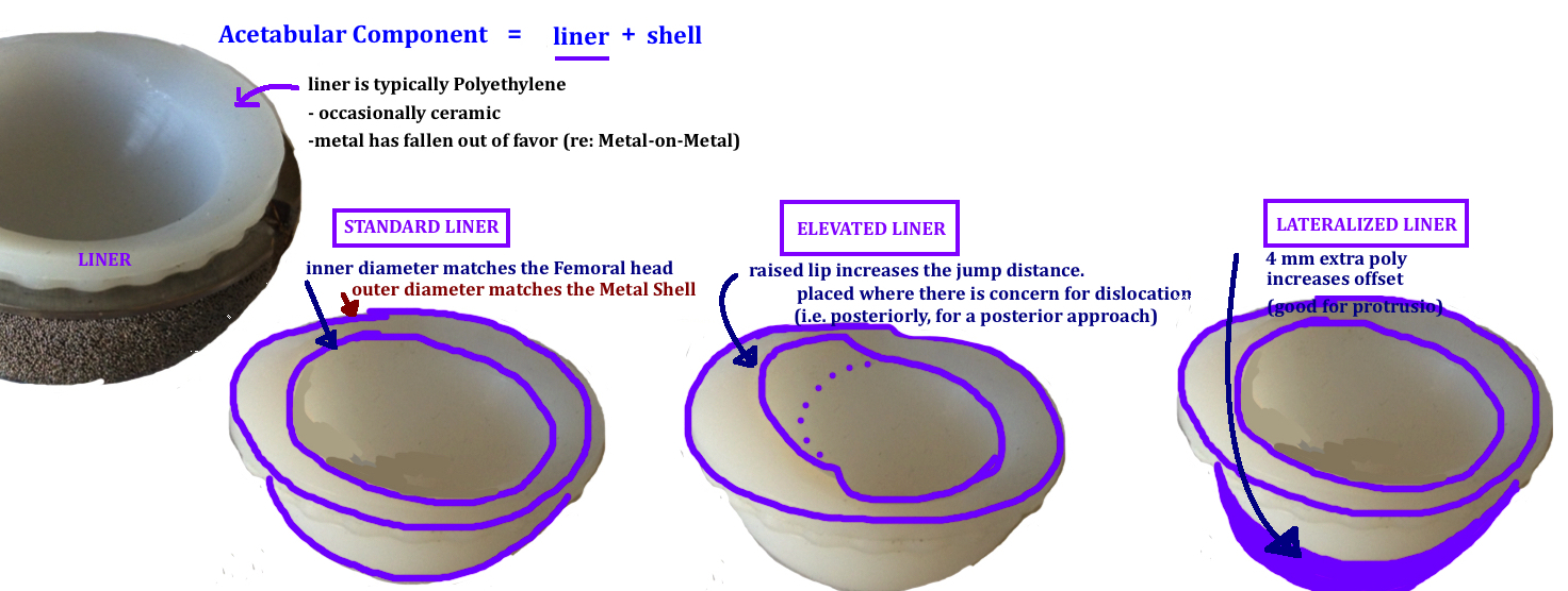 types of liner for acetabular implant in THA