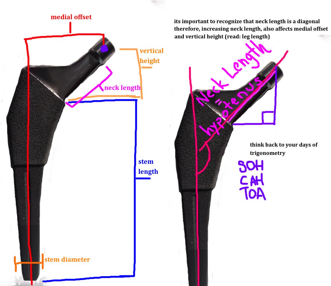 important landmarks of the femoral stem