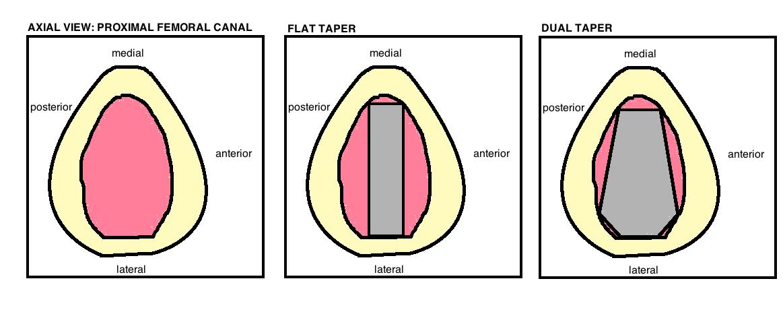 femoral stem designs