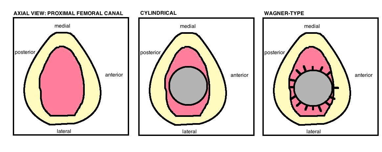 revision femoral stem designs