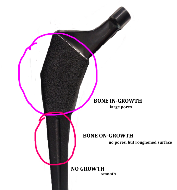 difference between bone in-growth and bone on-growth for press fit femoral stem