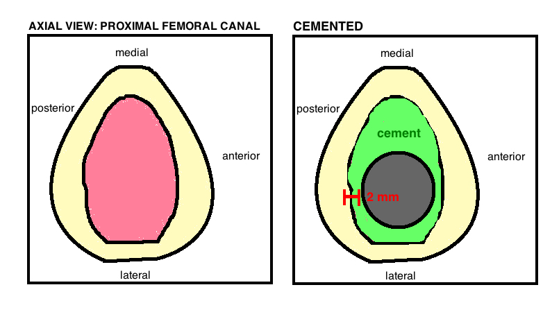 cemented femoral stem
