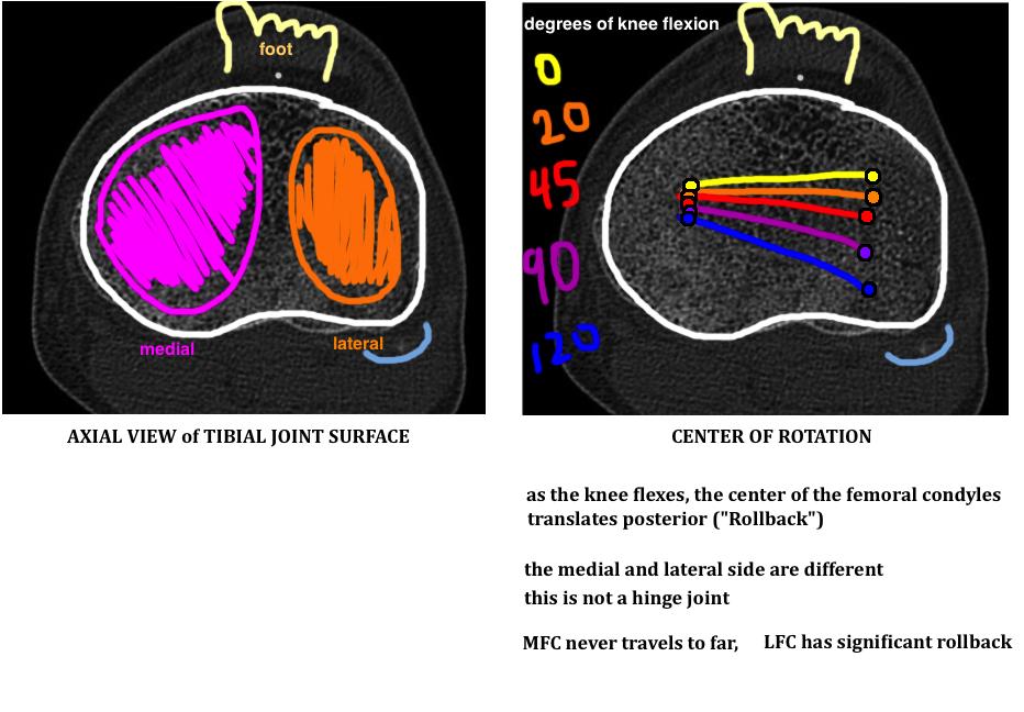 explaining posterior rollback of the femur diagram