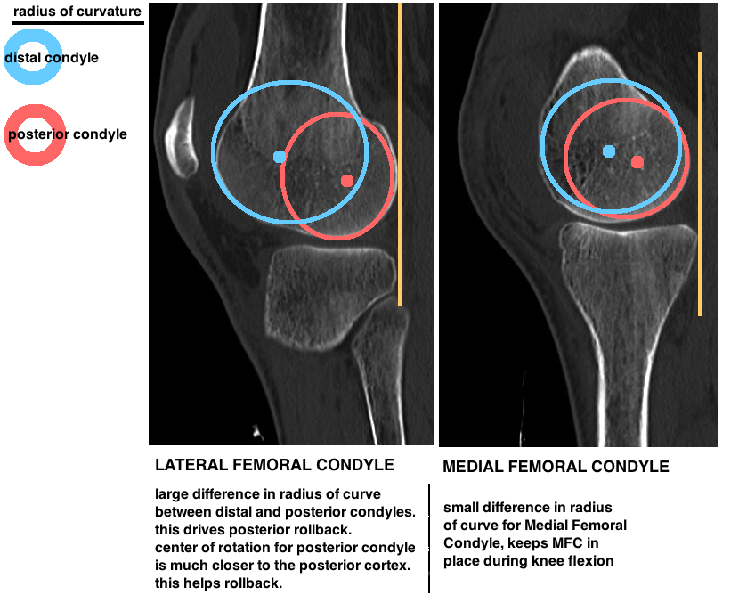 difference in medial and lateral femoral condyle and effect on knee kinematics