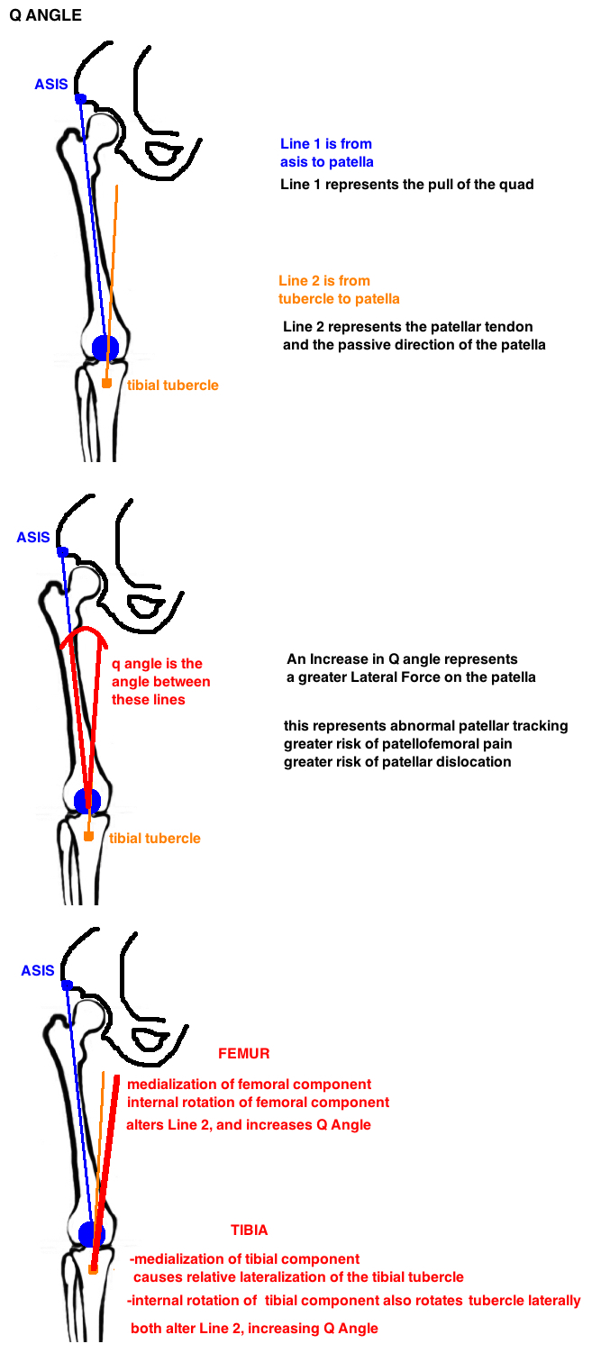 q angle diagram for total knee arthroplasty