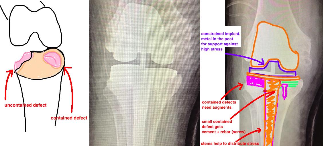 bone defects 1.jpg
