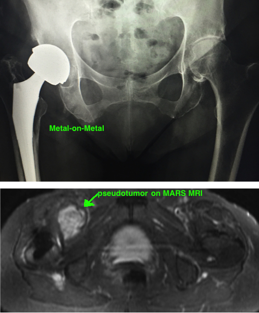 mom implant.jpg