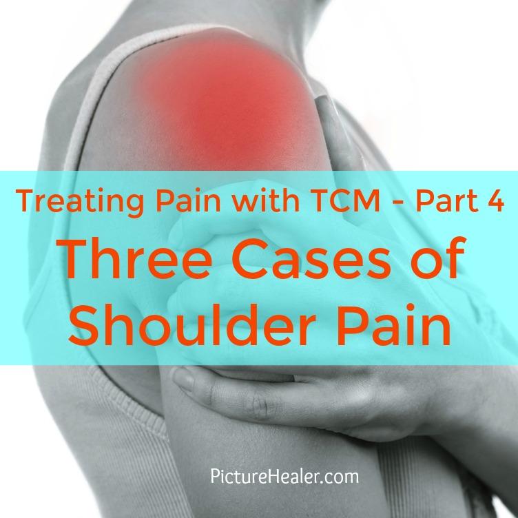 shoulder pain case study