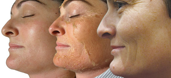 "Perfection Lift Chemical Peel  Full Face & Neck: $ 150    This exclusive blend of salicylic, lactic, resorcinol and retinol in a blend of peptides and plant derived stem cells creates ""perfection"" in addressing moderate to severe photo damage, deeper lines, and wrinkles as well as pigmentation disorders and acne."