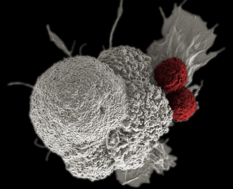 Photo courtesy of Creative Commons  National Institute of Health Visible through an electron microscope, two T-Cells attack a cancer cell. This is one type of biological therapy offered as an alternative to chemotherapy.